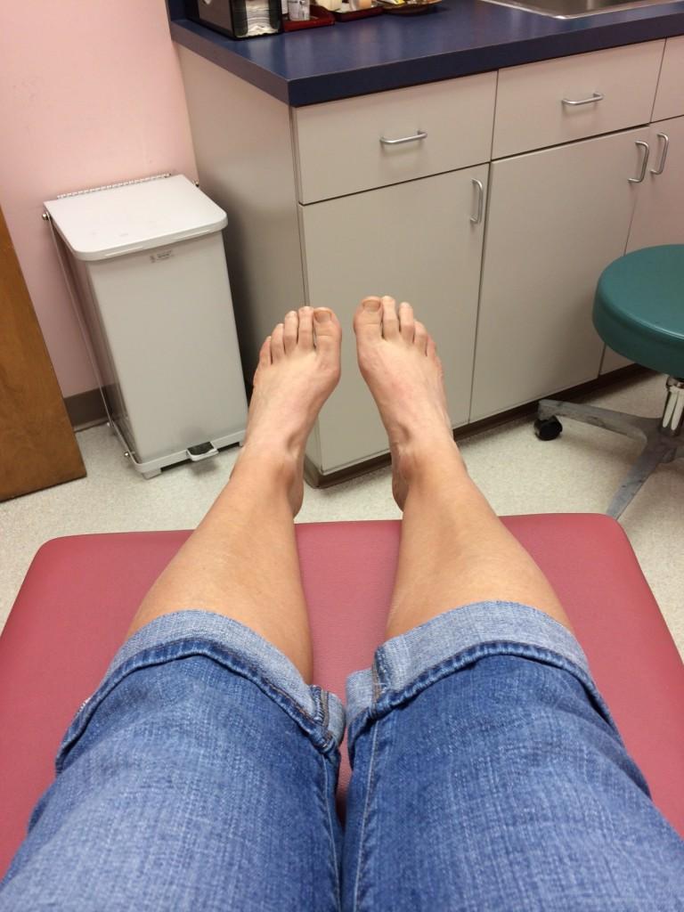 ugly runner feet